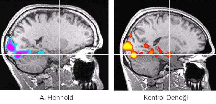 Alex honnold - Beyin Görüntülemesinde
